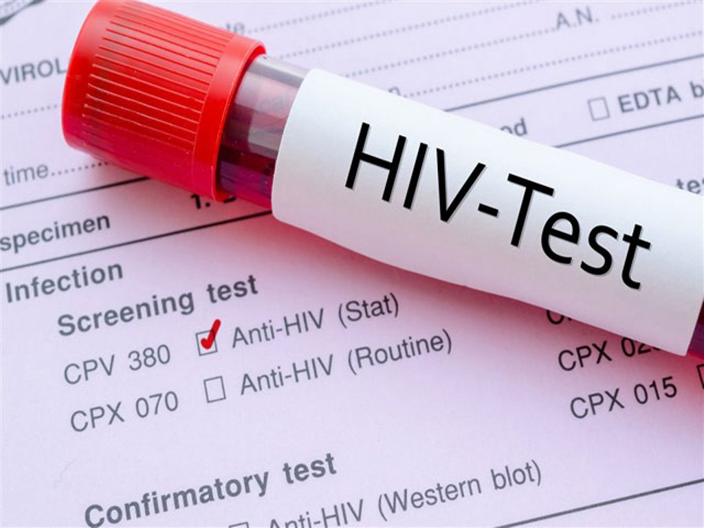 338 people infected with HIV in FYROM