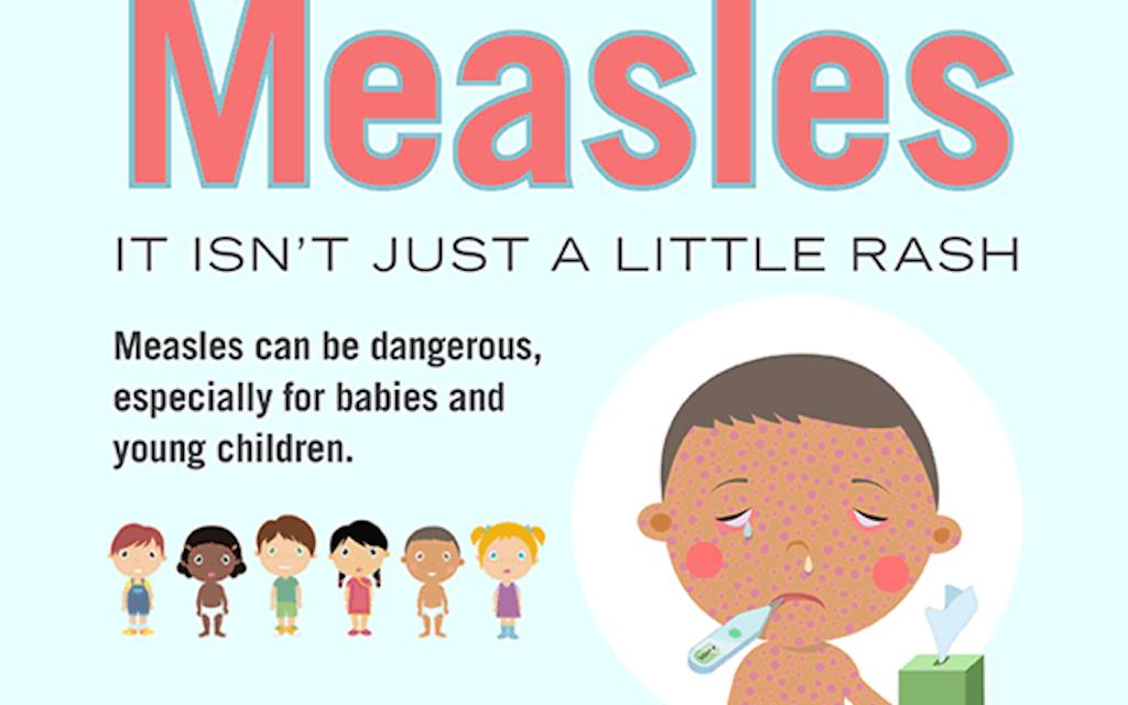 Measles: Children under 1 should not be taken to Greece, Romania or Serbia – Bulgarian professor