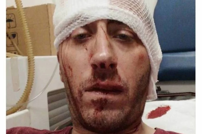Banja Luka journalist brutally beaten