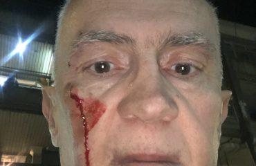 Πρώην Σέρβος αξιωματούχος για τα ανθρώπινα δικαιώματα δέχθηκε επίθεση στο Βελιγράδι