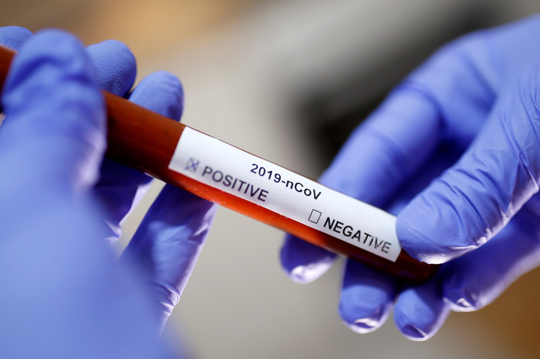 Balkan 07/04/20: 48 374 potvrenih slučajeva zaraze – preminulo 1 237 pacijenata